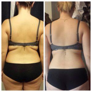 похудение до и после отзывы врачей о чае чанг шу